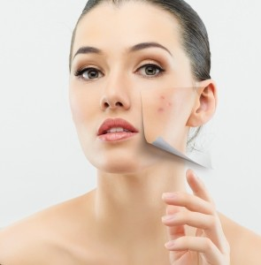 Tips to get rid of freckles and pigmentation