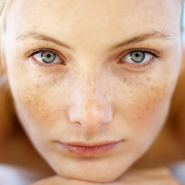 Freckles (ephelides)