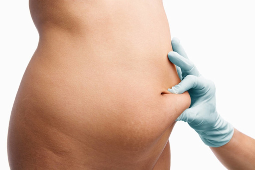 Causes of sagging belly
