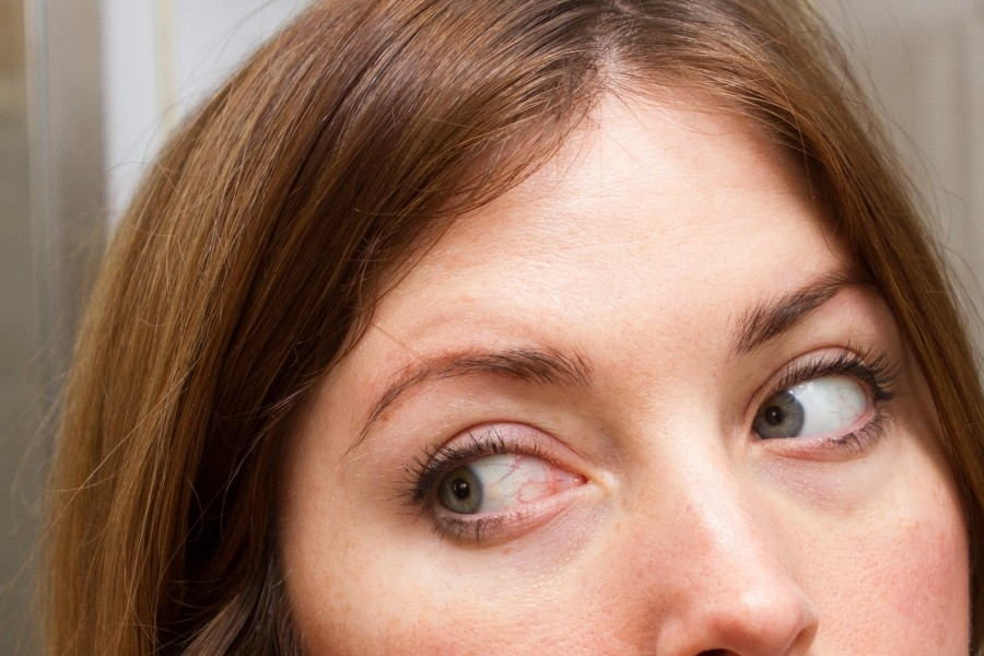 disadvantages of means for the growth of eyelashes