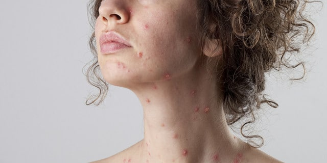 Chicken pox in adults